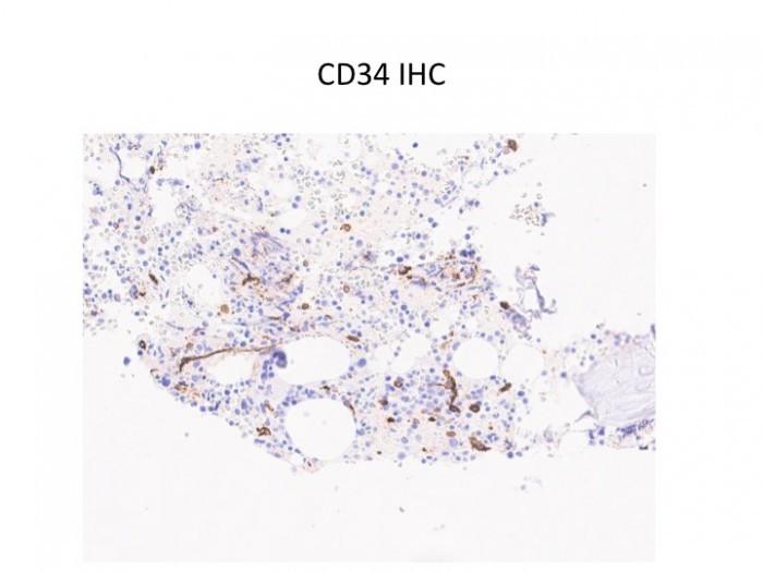 CD34 IHC