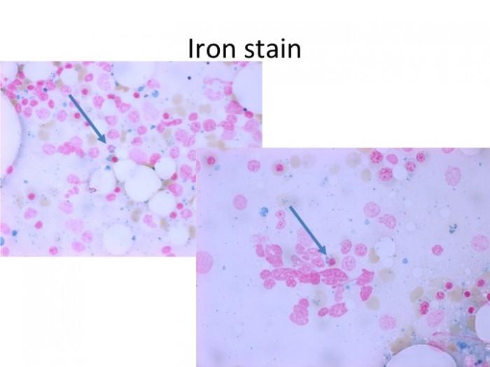 Iron stain